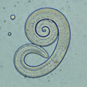 Trichinella spiralis.