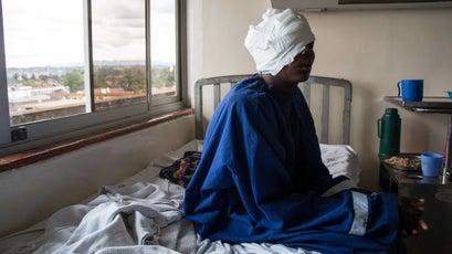 Lesingiran, a teenage Samburu pastoralist shot in the head by KDF bullets.