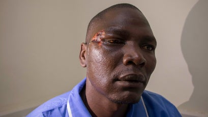 John Mulijo Epar, a Sosian security officer, played dead in his own blood to escape death.