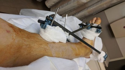 An external fixator binding bones in Florine's left leg together.