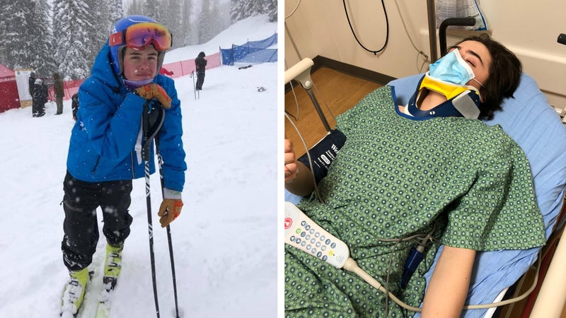 Left: Hatcher at a junior ski racing competition in Colorado. In the emergency room after his fall.