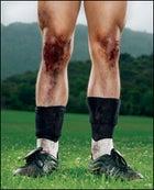 bodywork knees