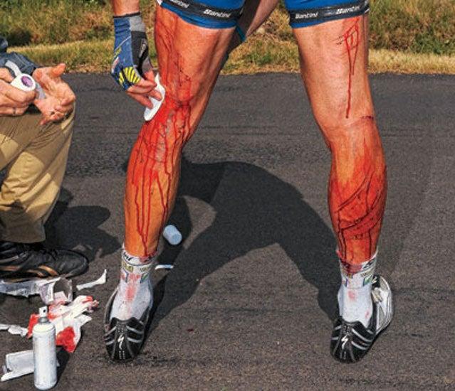 Johnny Hoogerland injury